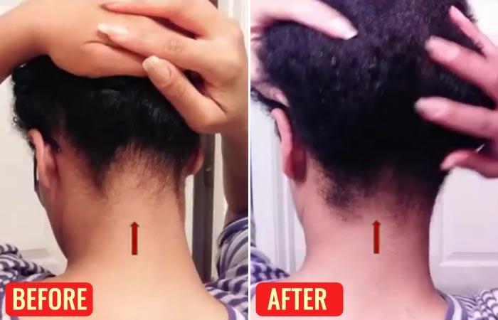 Emu Oil For Hair Loss – Reviews-3