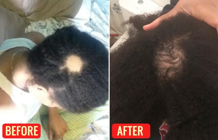 Emu Oil For Hair Loss – Reviews
