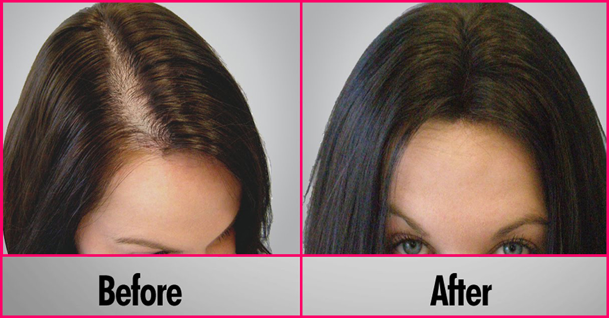 Olive Oil For Hair Before And After Www Pixshark Com