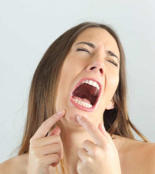 How To Get Rid Of Pimples On Your Chin – 3 Effective Ways