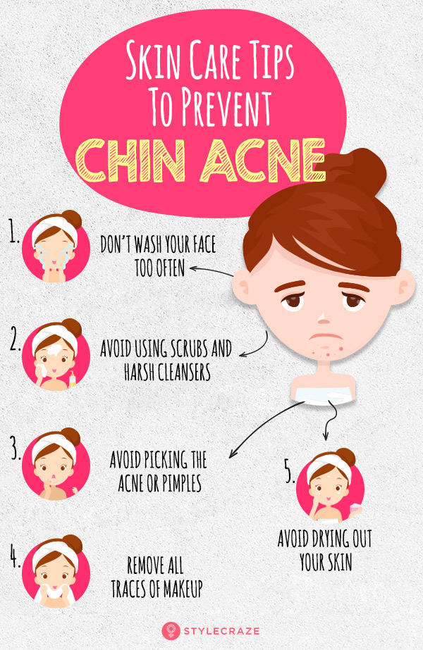 How To Prevent Chin Acne Or Pimples Essential Skin Care Tips