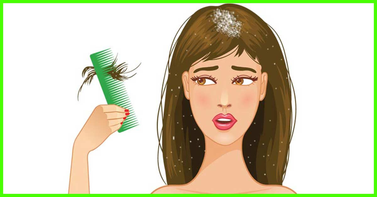How To Prevent Dandruff In Winter?