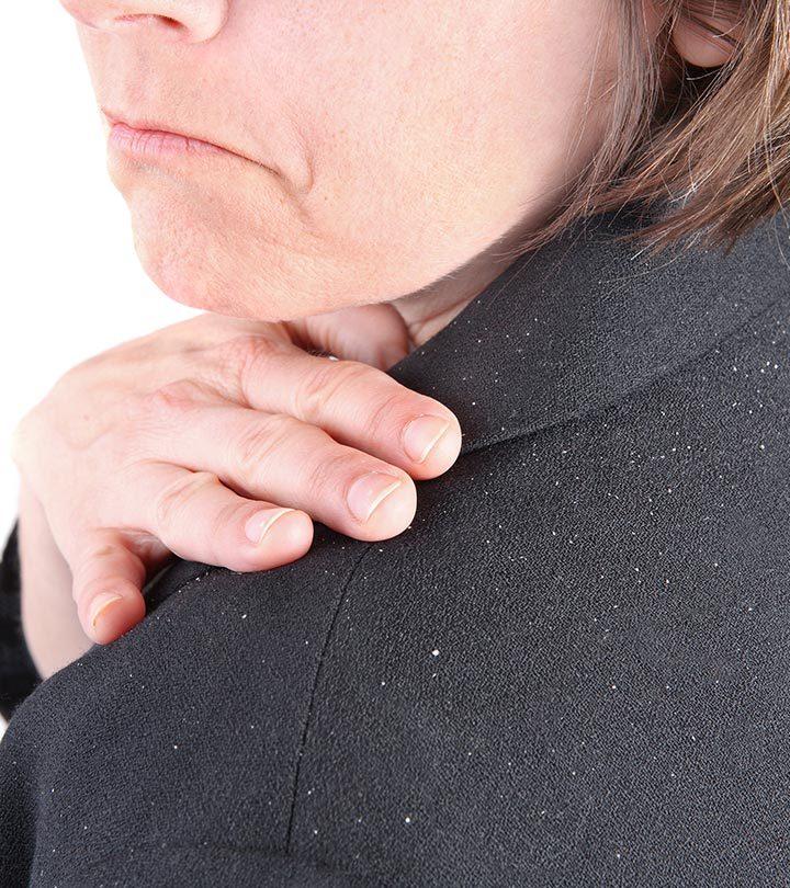 How-To-Prevent-Dandruff-In-Winter