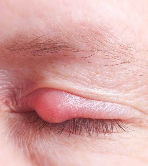 How-To-Remove-Pimples-On-Eyelids