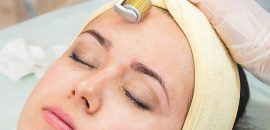 How-To-Use-Dermaroller-For-Acne-Scars