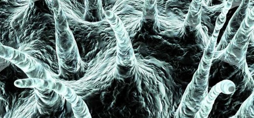 Is-Dandruff-Caused-By-Fungal-Infection