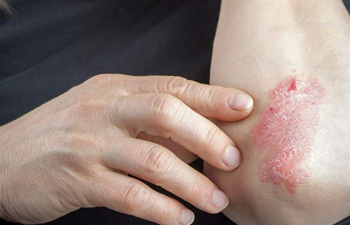 May Treat Skin Diseases