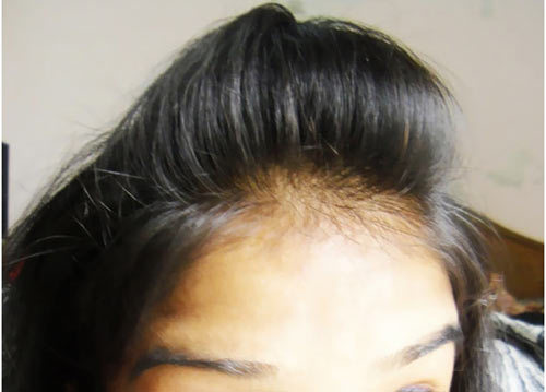 Puffy Hair Style Step By Step Tutorial Youth Puls