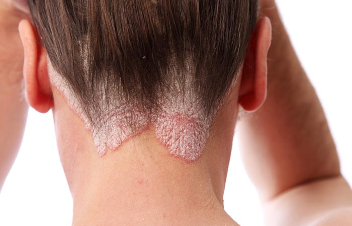 Scalp Psoriasis - Signs And Symptoms