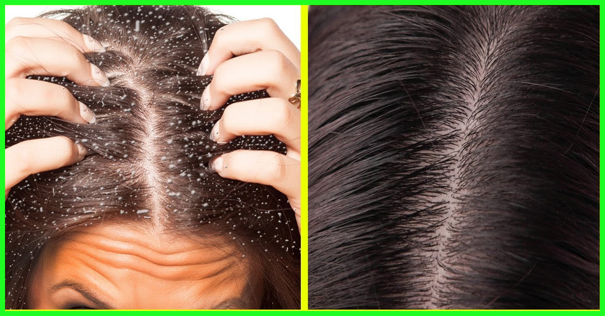 Image result for dandruff