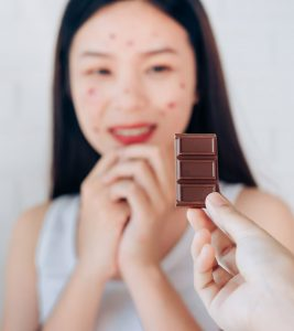 Top 10 Foods That Can Cause Acne