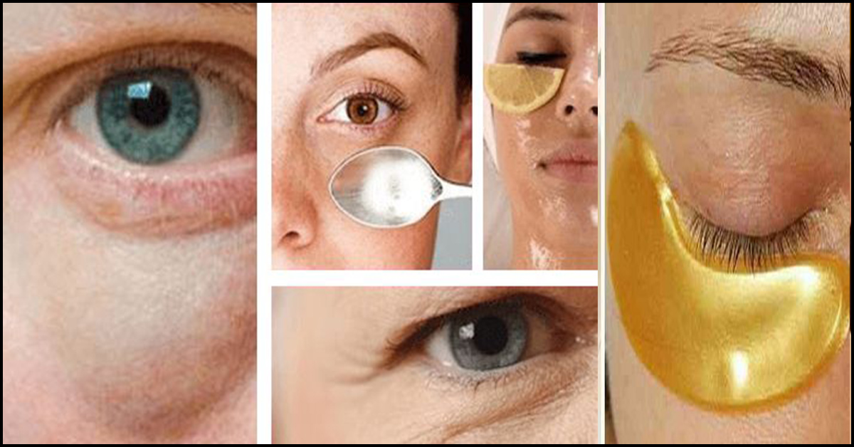 16 Home Remedies To Get Rid Of Eye Bags