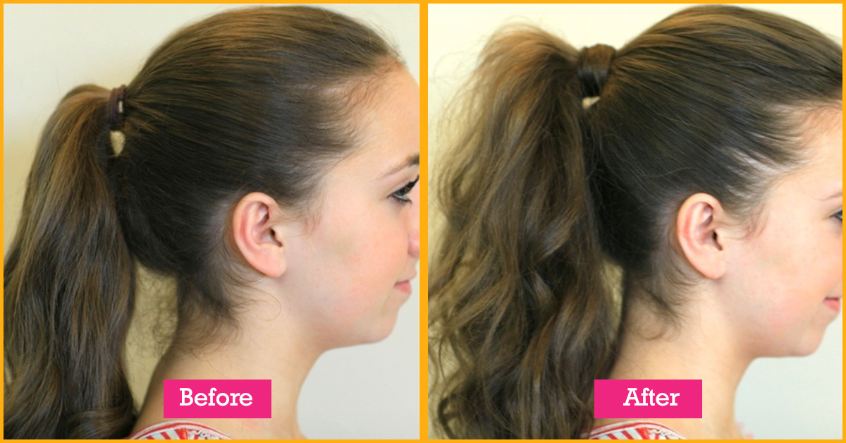 Women Hair Styles To Cover Thinning Forehead Hairline