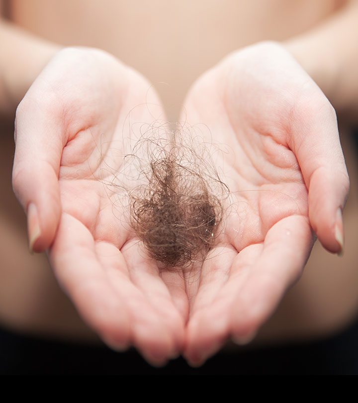 Top 5 Permanent Cures To Treat Hair Loss