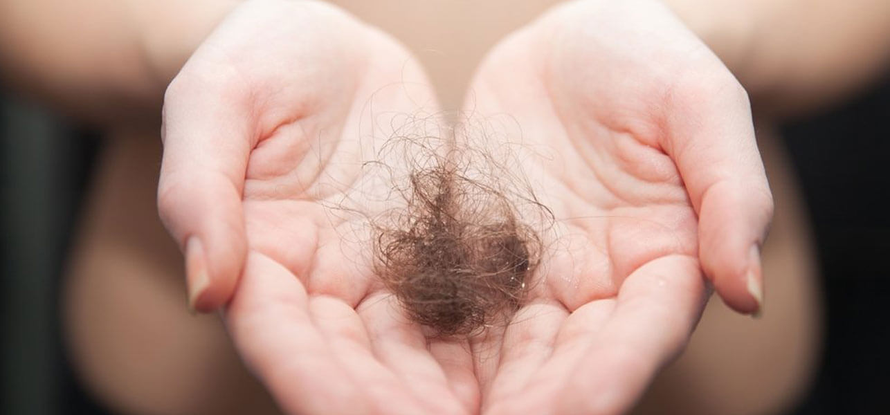 Top-5-Permanent-Cures-To-Treat-Hair-Loss