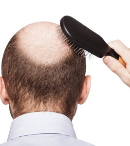 What Is DHT Hair Loss And How To Treat It?