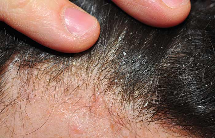 Different Types Of Dandruff - Dry Skin-Related Dandruff