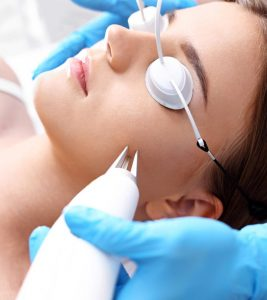 Laser Treatment For Acne Scars: How It Works, Types, Effectiveness, And More