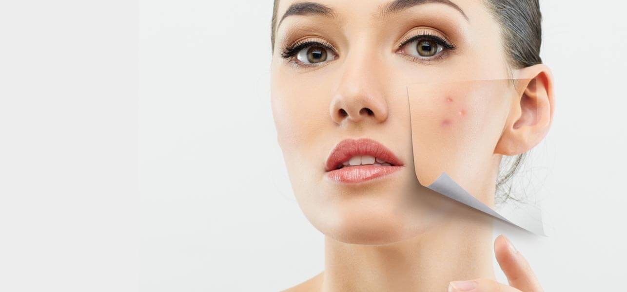 10 Simple Remedies For Treating Dry Skin Acne