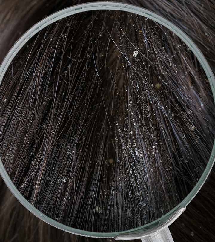 Different Types Of Dandruff And How To Stop Them