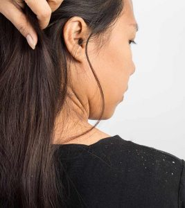 How To Get Rid Of Dandruff Using Baking Soda?