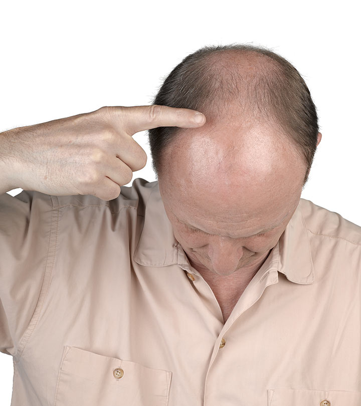 Rapid hair loss causes in men