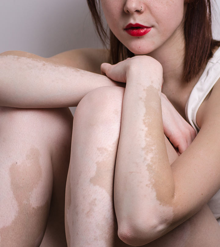 Vitiligo Diet – What Is It And How Does It Help Treat Vitiligo?