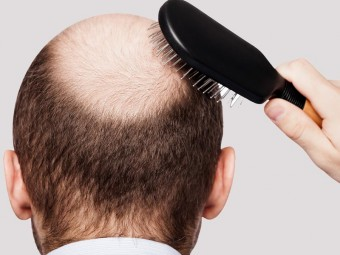 5868_Mesotherapy-For-Hair-Growth