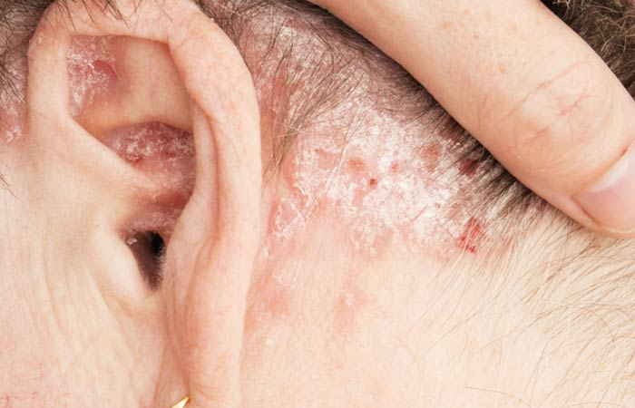 6. Dandruff Caused By Psoriasis