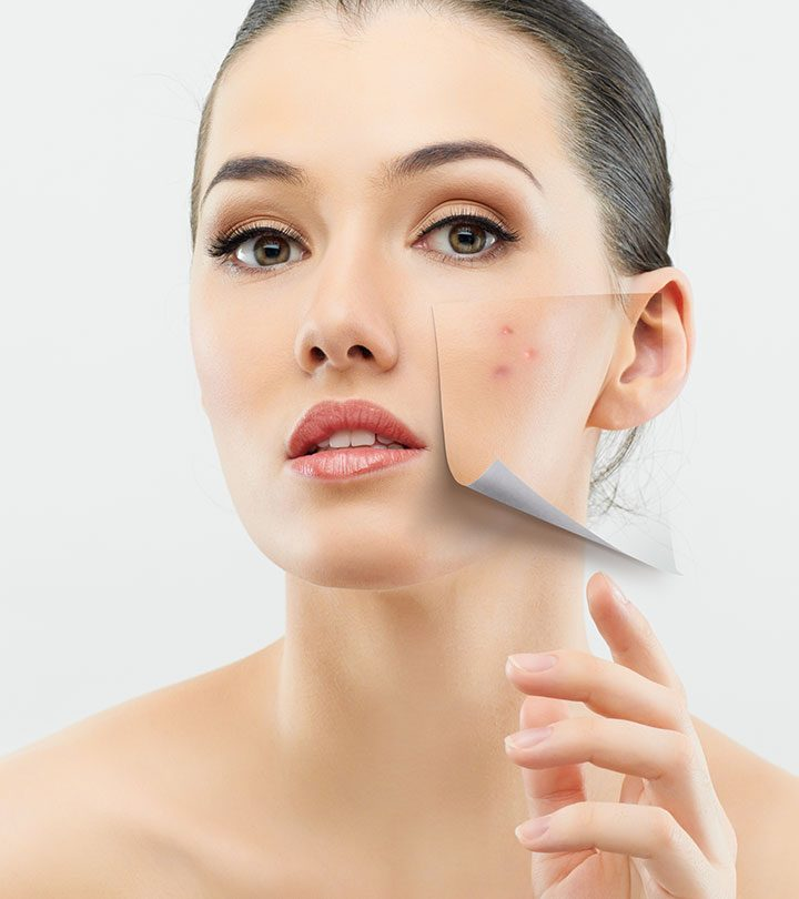 10 Simple Remedies For Treating Dry Skin On Face With Acne
