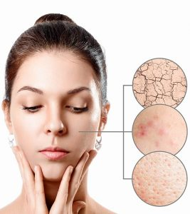 Acne On Dry Skin: Causes, Natural Remedies, Treatment