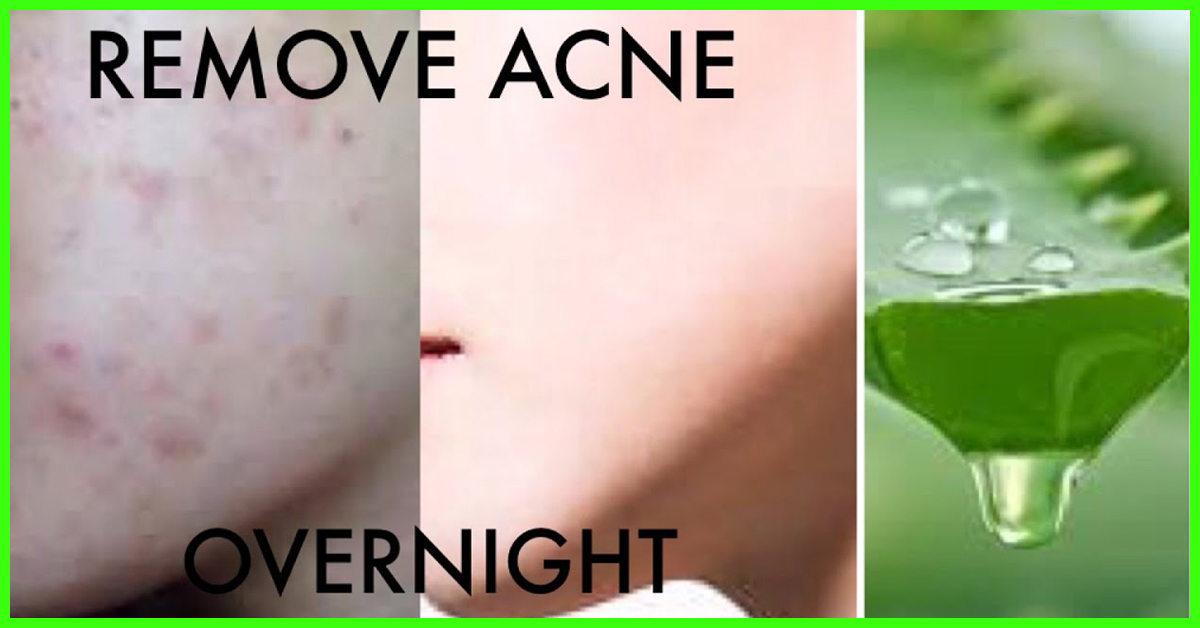 how to take off acne fast