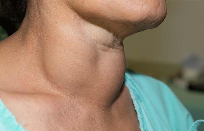 Symptoms Of Hair Loss Due To Iodine Deficiency - Goiter