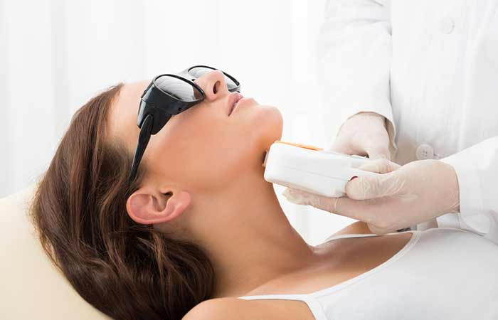 How Does Laser Treatment Or Laser Resurfacing Work - Laser Treatment For Acne Scars
