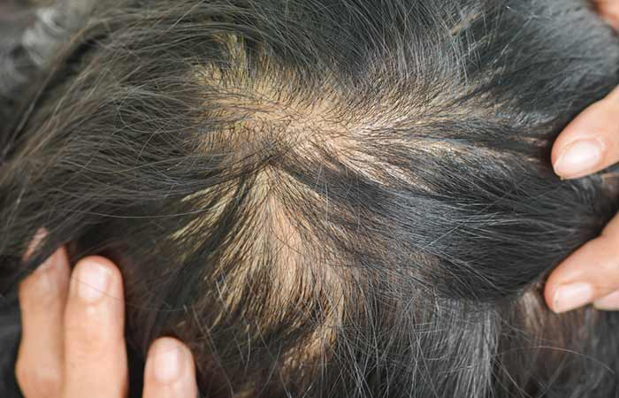 Symptoms Of Hair Loss Due To Iodine Deficiency
