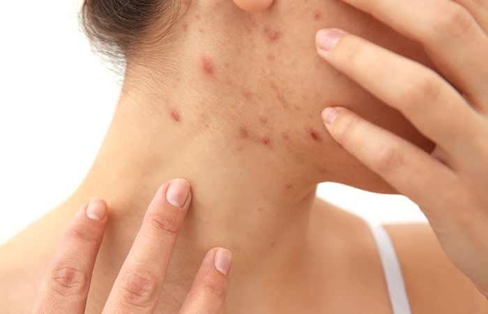 Understanding Acne And Acne Scars How Are They Formed - Laser Treatment For Acne Scars