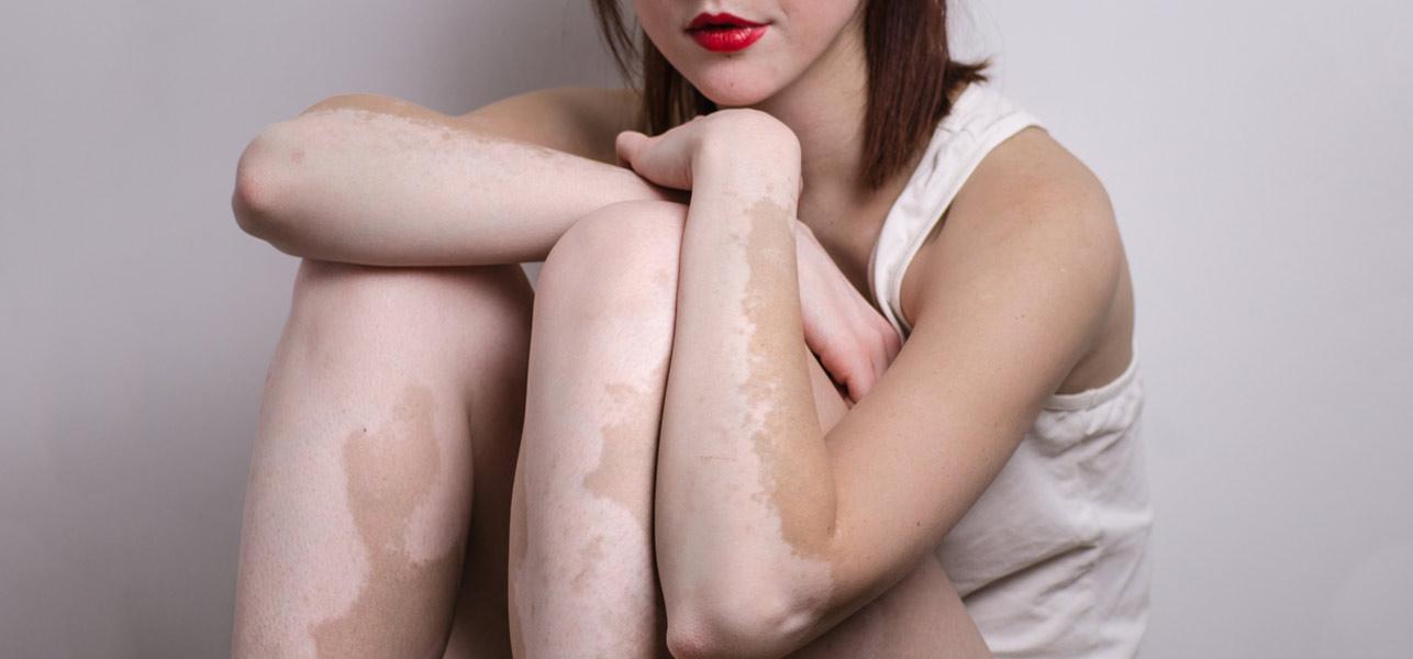 Vitiligo-Diet0