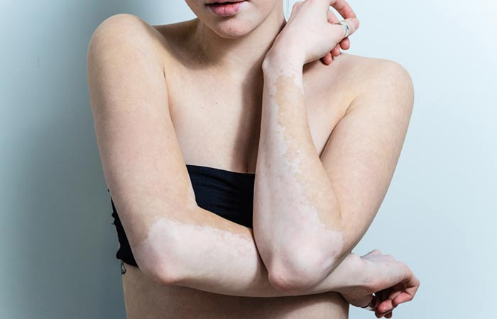 Vitiligo Definitive Facts