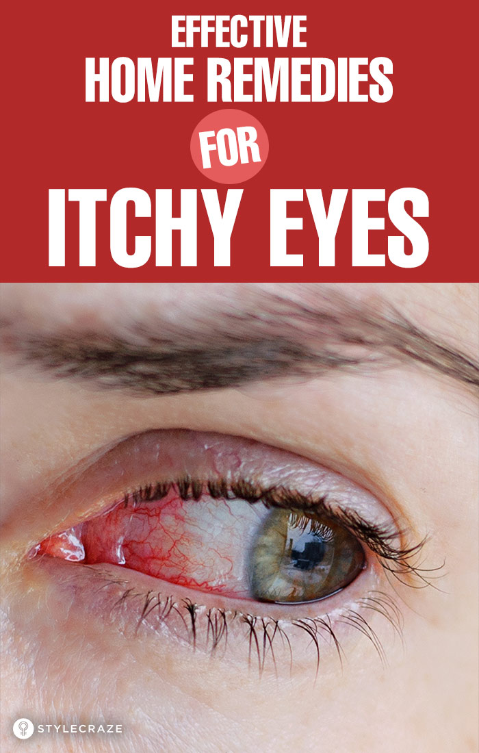 13 Effective Home Remedies For Itchy Eyes Causes And