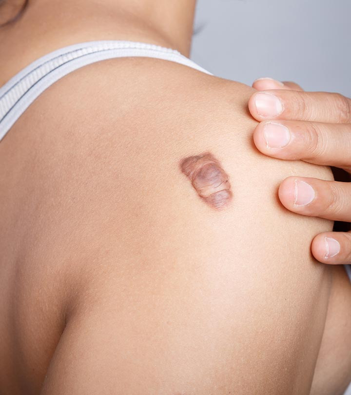 Top 12 Effective Home Remedies To Treat Keloids