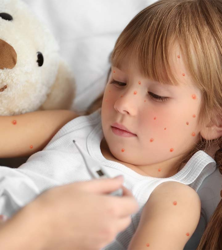 Top 16 Effective Home Remedies To Get Rid Of Chickenpox