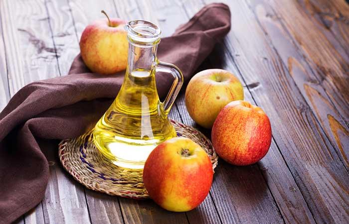 How To Get Rid Of Sunburn Blisters - Apple Cider Vinegar