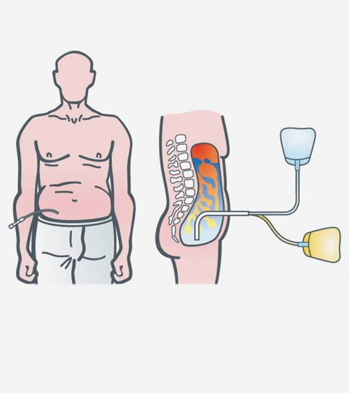 Dialysis-Patient-Diet-4-Important-Ingredients-To-Monitor