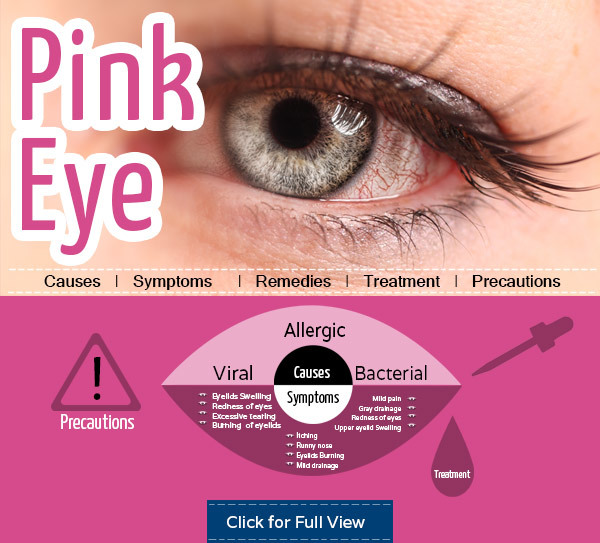 Get Relief From Pink Eye