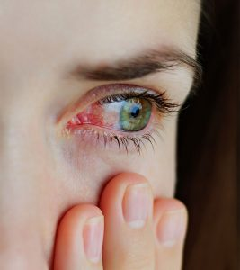Pink Eye (Conjunctivitis) – Types, Causes, Symptoms, And Natural Treatment Options