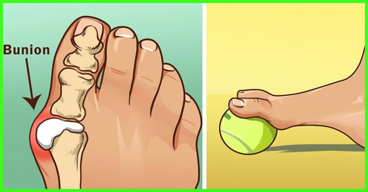 how to tell if you have gout