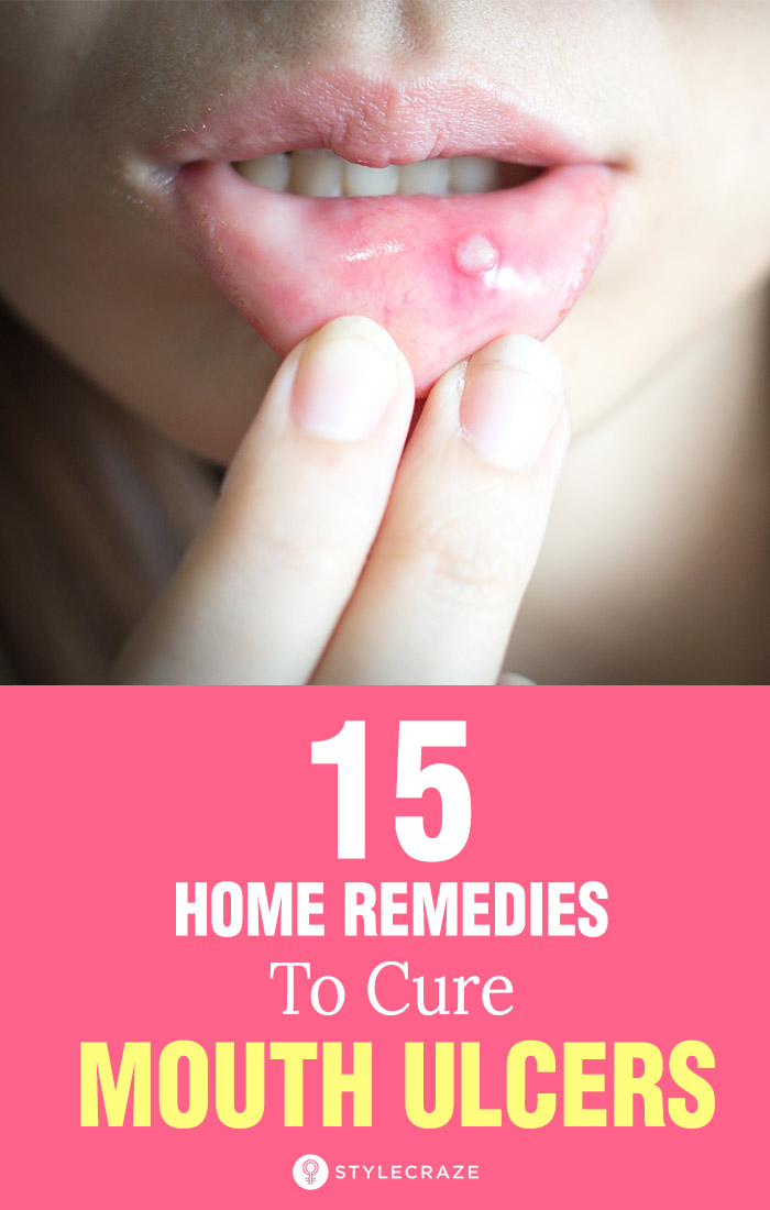Home Remedies For Mouth Ulcer 15 Natural Remedies To Try At