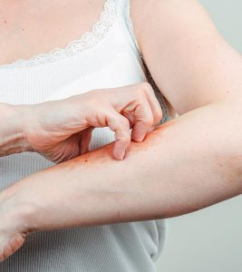 What Is Psoriasis – Causes, Symptoms, Types, And Home Treatments