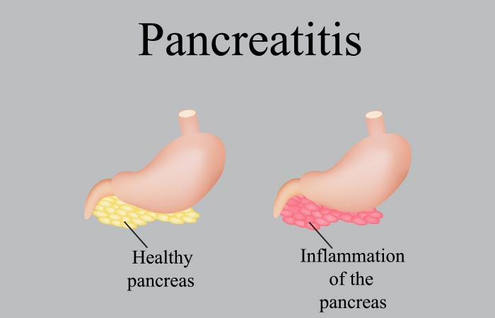What Is The Difference Between Chronic And Acute Pancreatitis