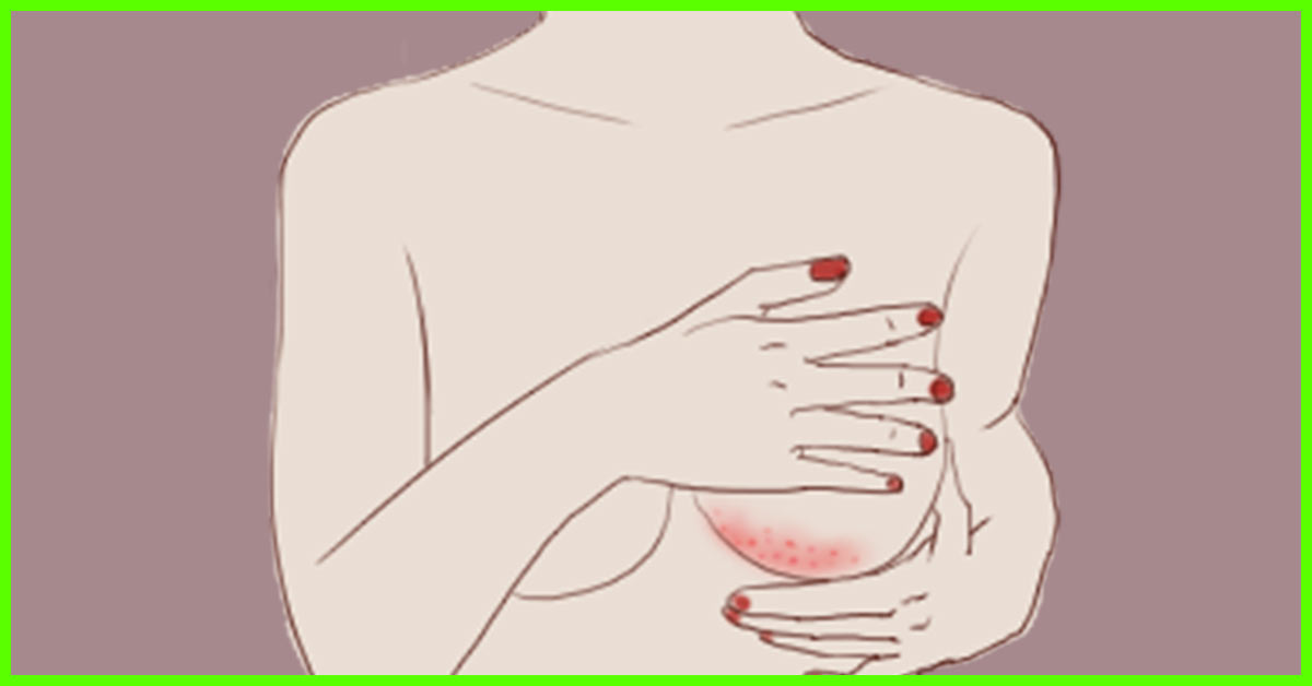 12 Home Remedies To Get Rid Of Rashes Under The Breast